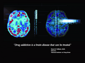 The Stolen Concept Of Neuroplasticity In The Brain Disease Model Of Addiction