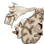 Pleasure Center Lobotomy: The Logical Extreme of The Brain Disease Model of Addiction