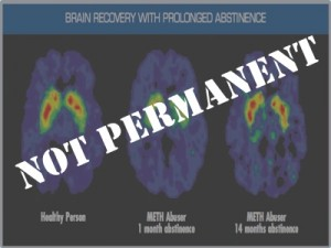 Permanent and Reversible? More double-talk from addiction researchers.